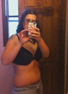 8 weeks after tummy tuck surgery
